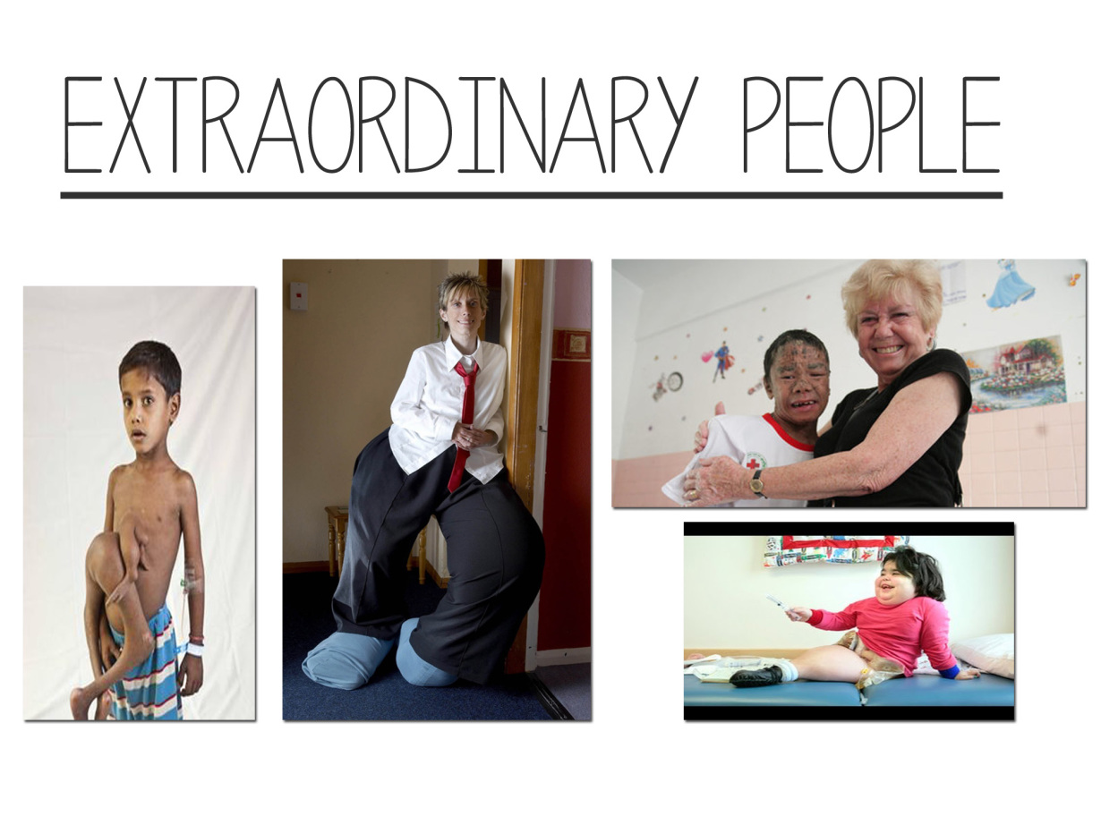 extraordinary people Extraordinary people is a television documentary series broadcast on channel 5  in the united kingdom each programme follows the lives of people with a rare.